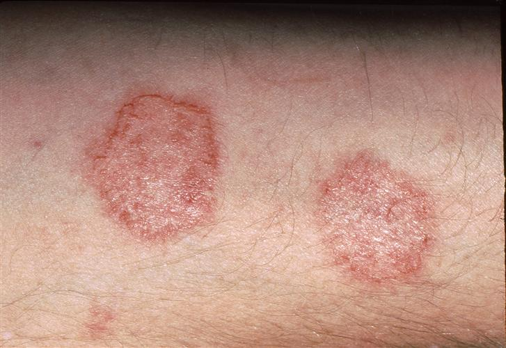 huiduitslag na antibioticakuur