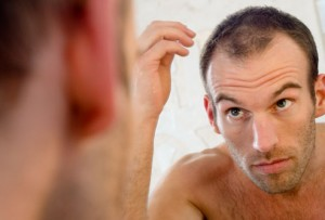 Mannelijke kaalheid tegengaan